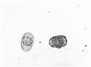 Oocysts of Eimeria sp. coccidium of cattle. Oocysts are shown X 400.